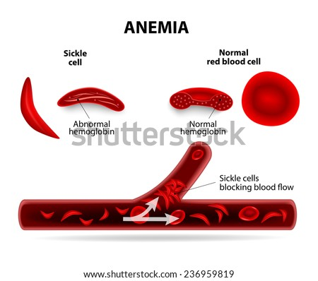 anemia. sickle cell and normal red blood cell - stock vector