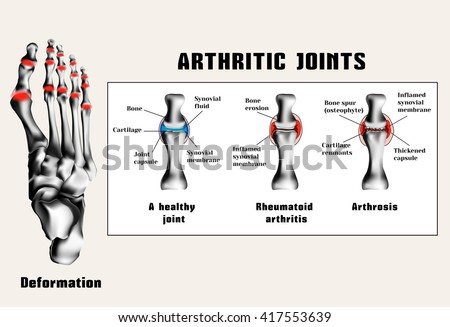 Arthritic joins (rheumatoid arthritis, arthrosis (osteoarthritis)).