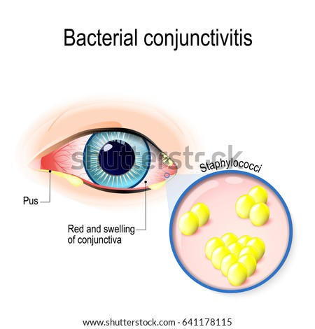 how to tell the difference between viral and bacterial conjunctivitis