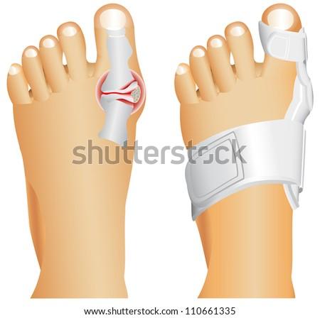 Big toe injury. Support for foot or big toe injury. Hallufix Hallux Valgus Splint. Bunion, Hallux valgus, popularly known as Bunion. - stock vector