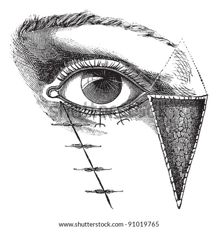 Blepharoplasty by the method of Dieffembach,  vintage engraved illustration. Usual Medicine Dictionary - Paul Labarthe - 1885.