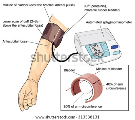 manual blood pressure cuff target