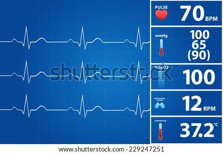 Blueprint Of Modern Electrocardiogram Monitor - stock vector
