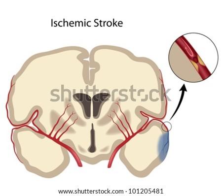 Brain ischemic stroke - stock vector