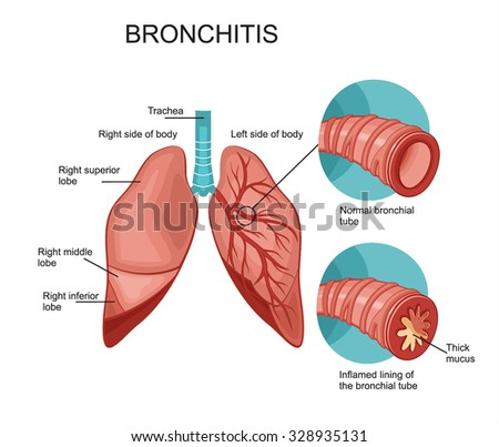 Bronchitis stock images royalty free images vectors shutterstock bronchitis ccuart Gallery