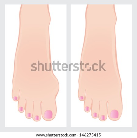 Bunion before and after operation. Vector illustration. - stock vector
