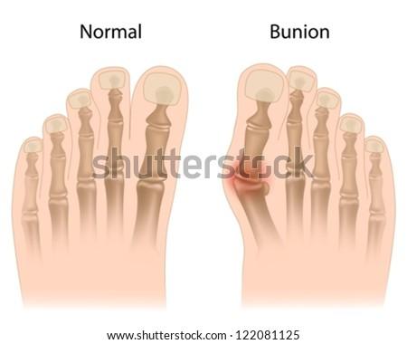 Bunion in foot - stock vector