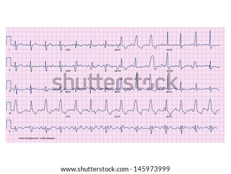 cardiogram on the pink grid - stock vector