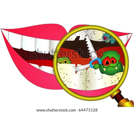 Carious teeth under magnifier - stock vector