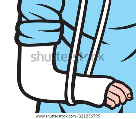cast on an arm (bone in cast, broken arm in cast) - stock vector