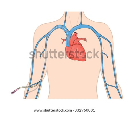 Catheter line (PICC) inserted into the superior vena cava from a peripheral vein in the arm. - stock vector