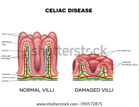 Celiac disease affected small intestine lining on a white background. Healthy and damaged villi.