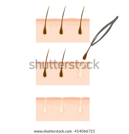 Close up of tweezers removing hair from skin - stock vector