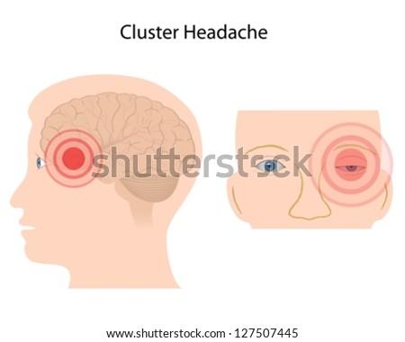 Cluster headache - stock vector