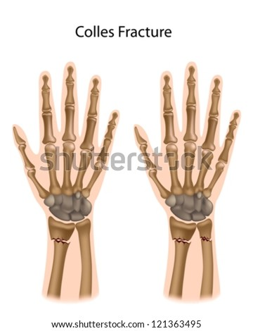 Colles fracture - stock vector