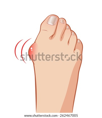 Color vector foot with a painful bunion - stock vector
