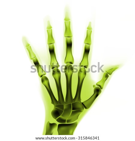 colorful vector x-ray hand - stock vector