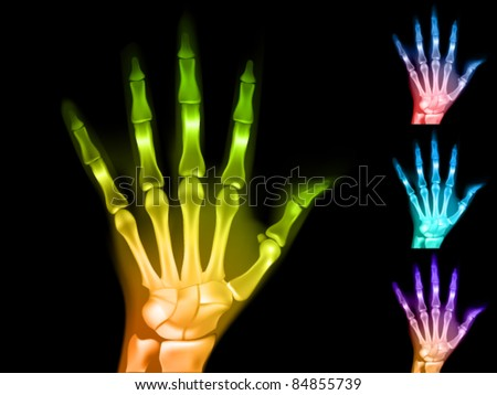 colorful vector x-ray hands - stock vector