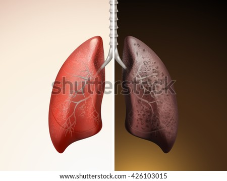 Stock Vector Comparison Of Lung Care D Illustration Healthy And Diseased Lung on 3d Kidney Diagram