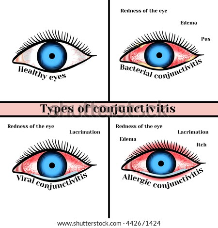 a look at major types of eye disorders Structure and function of the eyes and eye disorders eye disorders there are two main types of photoreceptors.