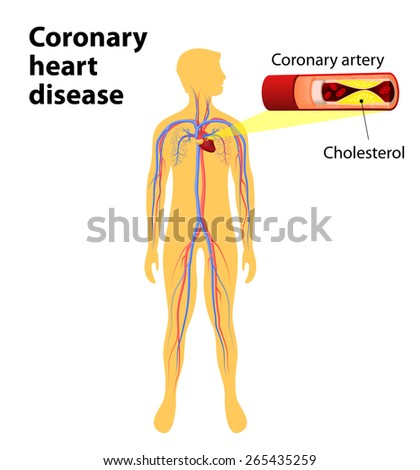 Coronary heart disease is a condition in which the heart's arteries become narrower. coronary artery disease. human vascular system on silhouettes of men. Cholesterol plaque in artery - stock vector
