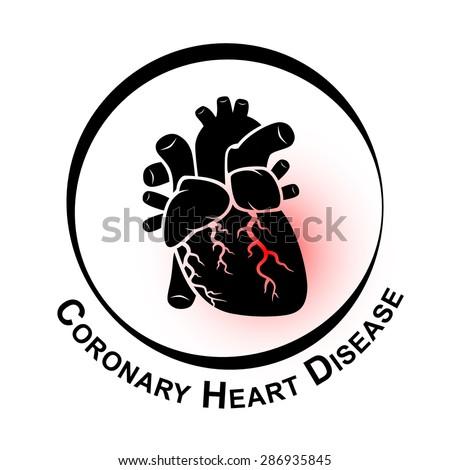 Coronary Heart Disease Symbol ( Ischemic heart disease , Myocardial infraction ) red area at coronary artery ( Thrombus occlude in coronary artery ) - stock vector