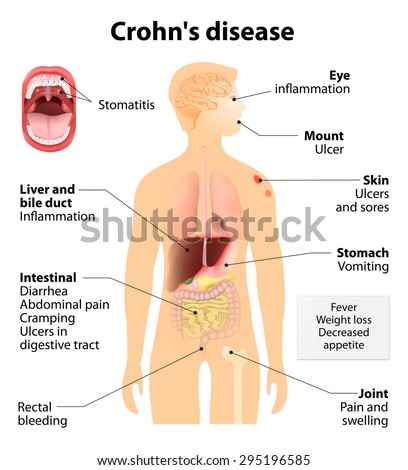 Crohn's disease or Crohn syndrome and regional enteritis. Signs and symptoms.  Human silhouette with highlighted internal organs