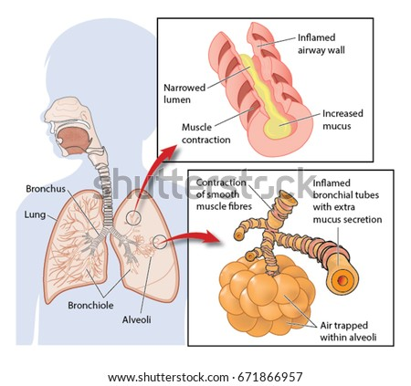 Cross section through lungs showing inflamed stock vector 2018 cross section through lungs showing inflamed stock vector 2018 671866957 shutterstock ccuart Images