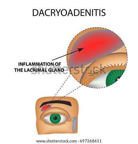 Dacryoadenitis inflammation lacrimal gland structure eye stock inflammation of the lacrimal gland the structure of the eye infographics ccuart Images