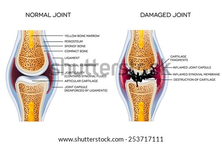 Damaged joint and healthy joint detailed diagram - stock vector