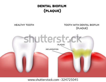 calculus formation relationship with plaque X-rays show severe periodontal gum disease horizontal bone loss and radiographic calculus before and after photos on plaque and calculus are bacteria and germs in mouth performed in our gum.