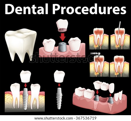 an overview of the different materials used in dental procedures Amalgam restorations with cement base amalgam is the dental treatment procedure performed base materials, which may be used and most of these will.