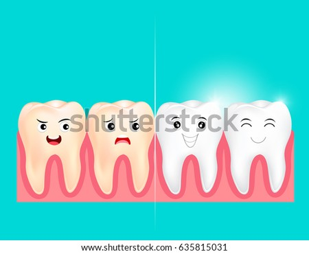 dental veneers stock photos