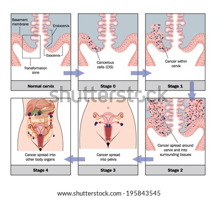 Development of cervical cancer -- labelled - stock vector