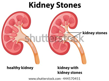 Diagram kidney stones illustration stock vector royalty free diagram of kidney stones illustration ccuart Images