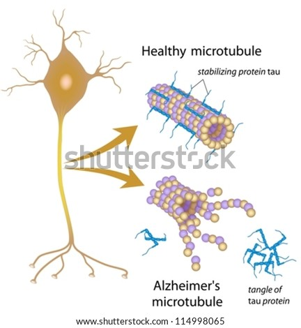Disintegrating microtubules in Alzheimer's - stock vector