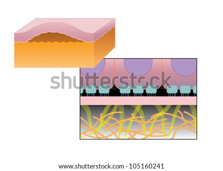 Drawing of blister formation in skin disease such as Epidermolysis bullosa, where the epidermis separates from the basement membrane and dermis - stock vector