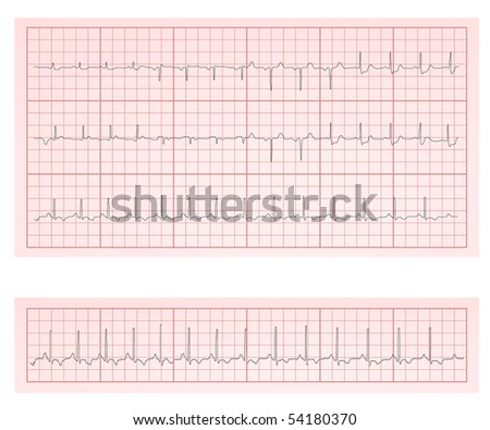 ECG heart chart scan vector illustration - stock vector
