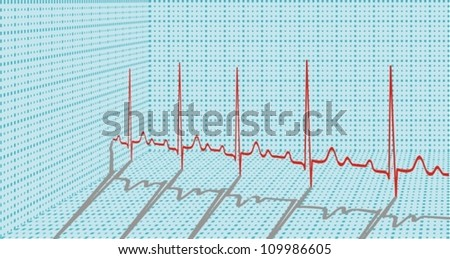 ECG in the form of 3d with shadows. Vector illustration. - stock vector