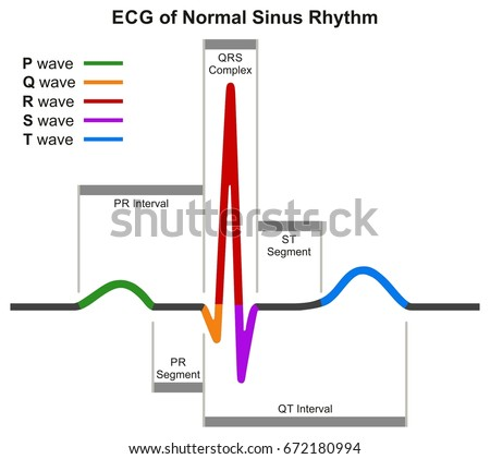 Ecg normal sinus rhythm infographic diagram stock vector hd royalty ecg of normal sinus rhythm infographic diagram showing normal heart beat wave including intervals segments and ccuart Choice Image
