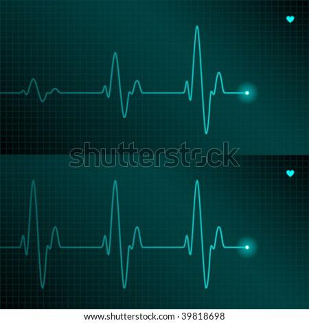 ECG tracing. Vector. - stock vector