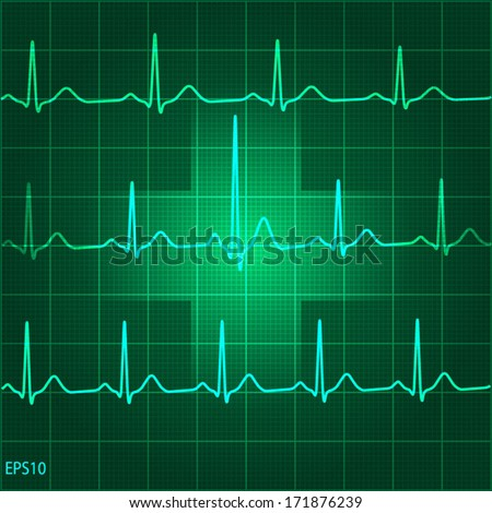 Electrocadiogram (ECG) on green graph background with medical sign - stock vector