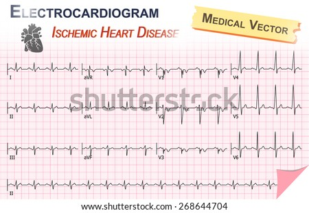 Electrocardiogram Ecg Ekg Ischemic Heart Disease Stock. Quiet Signs. Romance Signs. Skin Tenting Signs Of Stroke. Stemi Signs. Baby Soft Spot Signs Of Stroke. Emoji Signs. Compatibility Signs Of Stroke. Act Fast Signs