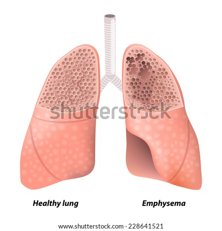 Emphysema. Chronic obstructive pulmonary disease. diagram showing a cross-section of normal lung and lungs damaged by COPD. Human anatomy - stock vector