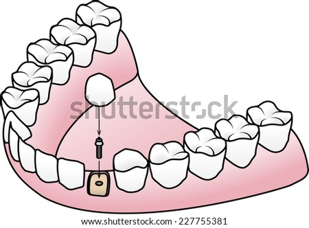Endosteal or Endosseous implant: the implant is placed into the jaw bone with an abutment to which the prosthesis is attached. - stock vector