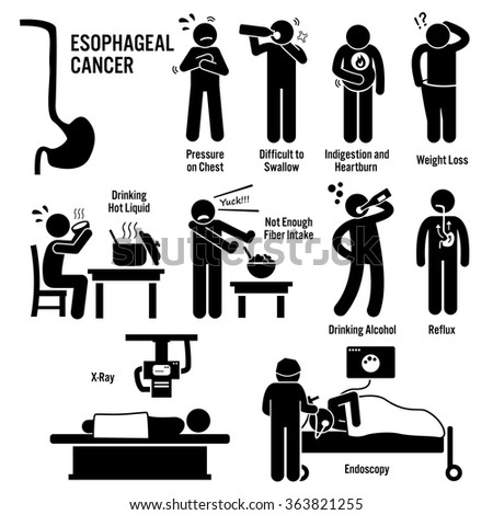 Esophageal Esophagus Throat Cancer Symptoms Causes Risk Factors Diagnosis Stick Figure Pictogram Icons - stock vector