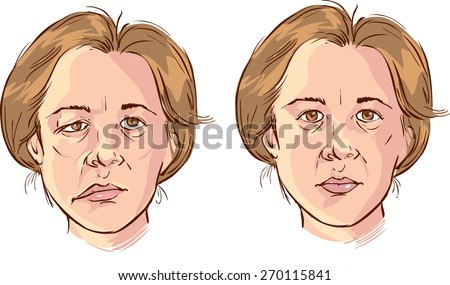 facial lopsided illustration - stock vector