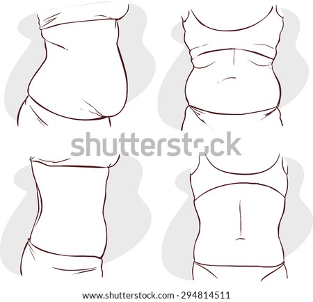Fat belly before and after treatment. - stock vector