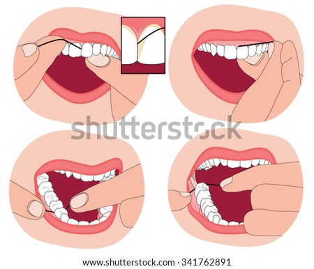 Flossing teeth, showing the floss material between the teeth and into the surrounding gum.