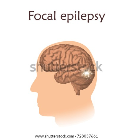 seizure how to know if focal or generalised